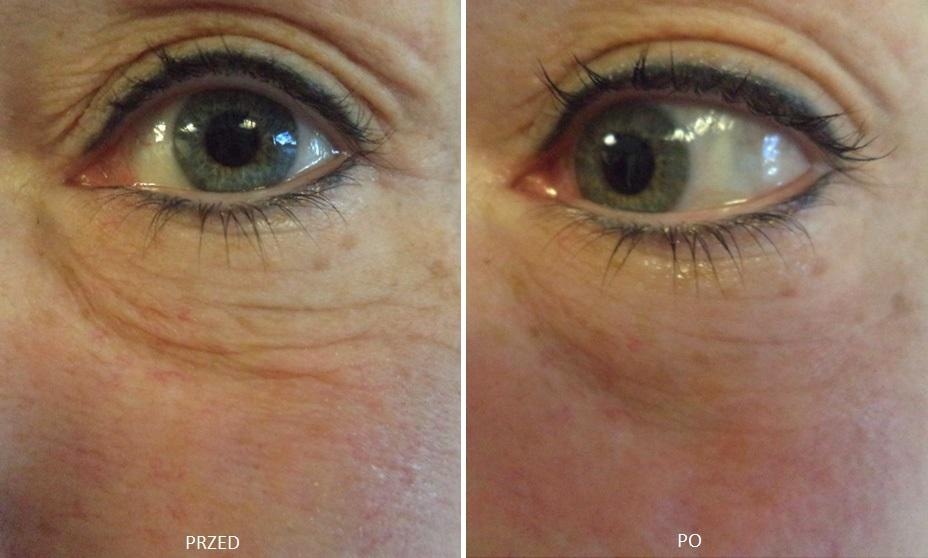 HIFU na zmarszczki pod oczami przed i po